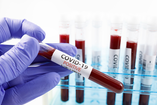 During the day, the number of patients with coronavirus increased by 33 in the Amur region