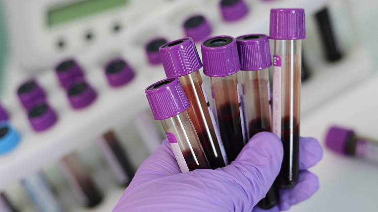 The number of cases of coronavirus in the Amur region increased to 112