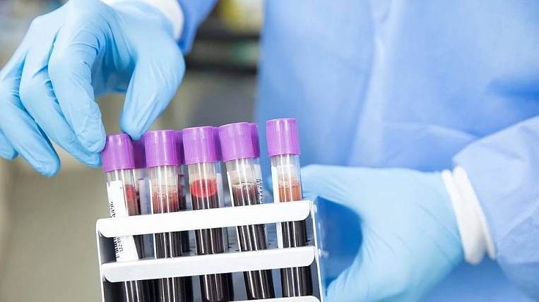 The number of patients with coronavirus in the Angara region exceeded 50