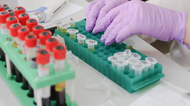 More than 1,5 thousand cases of coronavirus confirmed in Amur region