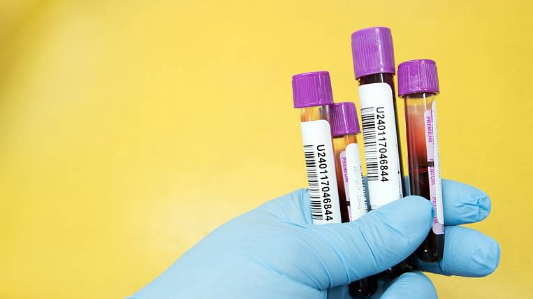 The number of patients with coronavirus in Yakutia increased to 869
